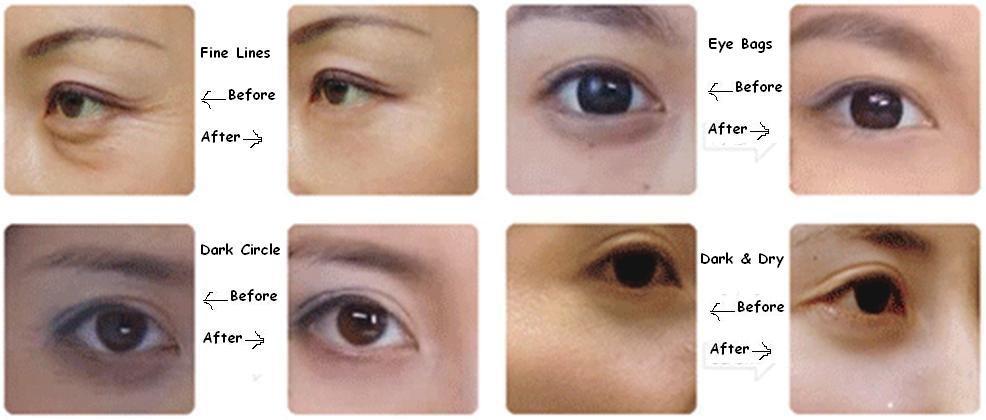 lumaca occhio patch idrogel