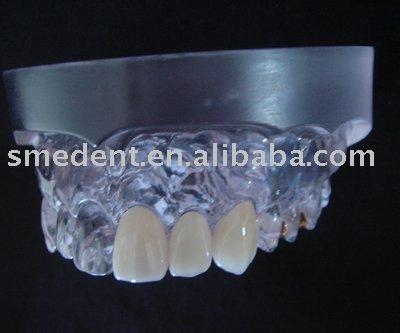 chicas de espana en ilos dentales